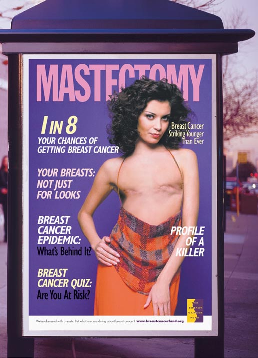 Mastectomy Breast Cancer Poster